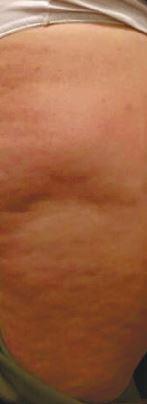 Cellulite Creme nach der ersten Anwendung
