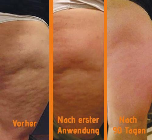 Zusammenstelllung Vorher und Nachher nach Anwendung mit Cellulite Creme